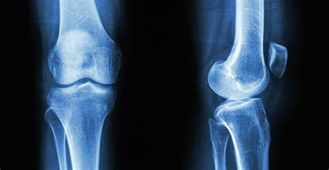 Using stem cells to fight osteoarthritis pain - Research
