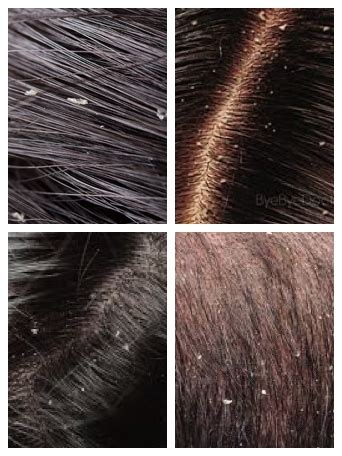 How To Recognize & Treat The Top Scalp Conditions: