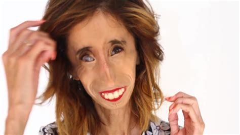 """The """"Ugliest Woman in the World"""" Shares What Makes Her"""