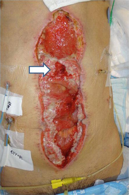 Stoma Revision on the Flaps in Cases of Abdominal Wall